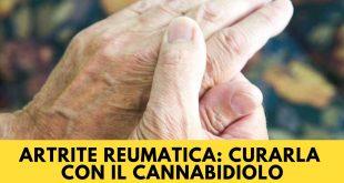Artrite Reumatica curarla con l'olio di Cannabidiolo