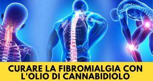 Curare la fibromialgia con l'olio di Cannabidiolo