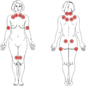 Curare la fibromialgia con l'olio di Cannabidiolo - Tender Points